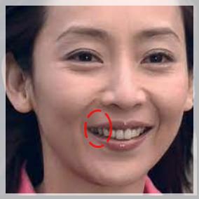 稲森いずみ 歯 画像